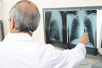 Physician explaining an X_ray