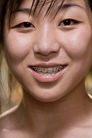 Portrait of a young woman with braces on her teeth