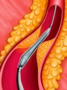 ARTERIAL ANGIOPLASTY, ILLUST. Angioplasty undertaken with the help of a balloon catheter and a stent : setting_up phase of a deflated catheter at cent...