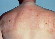 Allergy testing: red wheals resulting from a positive patch test on a patient´s back. A patch test is used to discover which of a number of possible s...