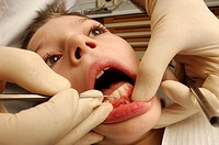 A dentist scrapes away plaque from the teeth of a young boy.