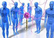 Parkinson´s disease, conceptual artwork. Hunched males figures standing around a myelinated neurone nerve cell. Parkinson´s disease is caused by the p...