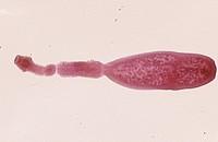 Echinococcus Dog Tapeworm. LM.