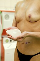 woman with implant before plastic operation at operation theatre
