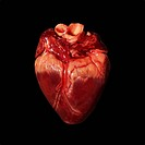 Pig´s heart. The heart of a pig is anatomically similar to that of a human. The heart is a hollow muscular organ that pumps blood around the body. The...