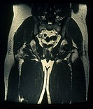 MRI scan of a longitudinal section of the pelvis of a 39_year_old man.