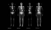 This composite set of images from a nuclear medicine bone scan demonstrates multiple metastatic lesions from an extra_osseous cancer. These sites of m...
