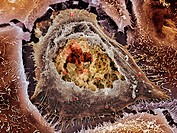 Chlamydia infection. Coloured scanning electron micrograph of a cultured human cervix cancer cell infected by Chlamydia trachomatis bacteria. At centr...