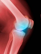 Arthritic knee, X_ray