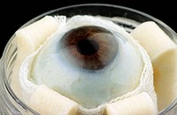 Human eye for cornea harvesting. Close_up of the right eyeball taken from a dead 69_year_old man. The cornea from this eye will be removed and stored ...