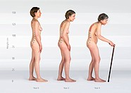 Progression of osteoporosis. Composite image showing the progression of osteoporosis of the back over 4 years. Osteoporosis is a condition in which bo...