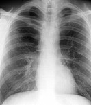 X_ray front view of the chest in a 41 year old male patient, showing bullous emphysema with the formation of bubbles dark at the apices in the lungs a...