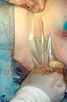 Breast cancer surgery. Image 20 of 20. Surgeon dressing a woman´s breast after surgery. In this procedure, malignant cancerous tumours were removed fr...
