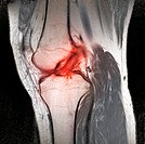 Anterior cruciate ligament tear. Coloured computer tomography CT scan of the knee joint of a patient with a tear of the anterior cruciate ligament ACL...