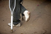 A Central American migrant traveling across Mexico to work in the United States with a plastered leg walks using crutches at the Catholic priest Aleja...