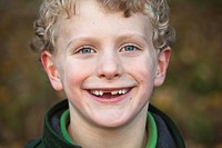 Young boy smiling, front tooth missing.
