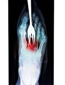 Foot fork_stabbing injury, coloured X_ray. The fork white, top has been stabbed into the area of the foot where the metatarsals join the tarsal bones....