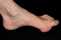 Claw foot pes cavus in a 61 year old male patient. Claw foot shows an exaggerated arch and turning up of the toes. This disorder may be present from b...