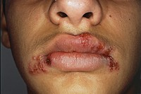 Close_up of herpes simplex labialis, showing red fluid filled blisters and scabbing around the lips of a 13 year old boy who also has impetigo. Herpes...