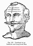 PHYSIOGNOMY, 1637.Forehead of an imbecile and long-lived man. Woodcut, 1637, from Ciro Spontini's 'Metoposcopia.'