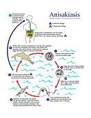 Anisakiasis life cycle. Diagram showing the life cycle of the parasitic nematodes roundworms that are the cause of anisakiasis. The parasite is common...
