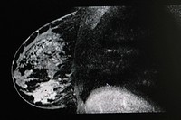 BREAST, MRI