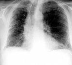 Fibrosing alveolitis. X_ray of the chest of an 82_year_old man with fibrosing alveolitis. Also known as idiopathic pulmonary fibrosis and cryptogenic ...