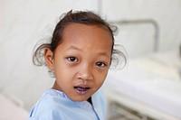 Cardiac surgery in Cambodia, Chirurgie cardiaque pour la Chaîne de l´Espoir ONG à Phnom Penh.
