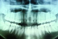 x _ ray picture from a dentist