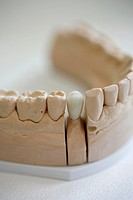 dental practice : a detail shot of a tooth model