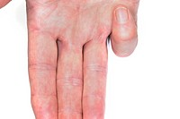 Close_up of the flexed small finger in a patient with trigger finger, a condition when a sheath surrounding a tendon in the hand becomes irritated, lo...