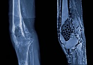 This image is a comparison of a lateral knee taken with MRI and x_ray showing the destuction of bone due to advanced osteomyelitis.