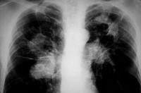X_ray of lungs of a patient with tuberculosis. Shows calcification of lung by Mycobacterium tuberculosis, the bacteria species that causes the disease...