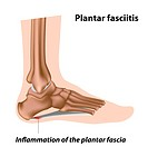 Plantar fasciitis, foot problem, eps8, contains gradient mesh
