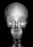 Human head on black and white x_ray film