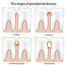 Periodontal Disease , eps8, mesh