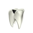 3d illustration looks caries tooth on the white background.