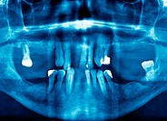 Panorex OPG Orthopantomogram mouth and theeth radiography
