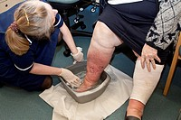 Practice nurse dressing a patient´s leg. The patient has lymphoedema swelling, an accumulation of lymph fluid caused by obstructed lymph vessels. The ...