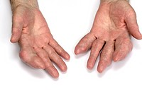 Swellings tophi in the fingers of both hands in an elderly male patient with gout. Gout is a disorder of uric acid metabolism in which crystals deposi...