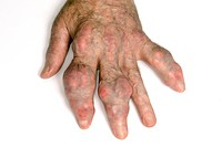 Swellings tophi in the fingers of the hand in an elderly male patient with gout. Gout is a disorder of uric acid metabolism in which crystals deposit ...