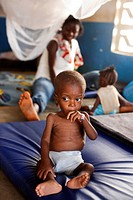 Undernourished child in a therapeutic feeding center in Monrovia, Liberia, implemented by Action contre la Faim ACF, an international non_governmental...