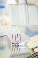 Germany, Bavaria, Munich, Scientist researching blood in laboratory