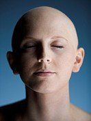 Close_up of a bald young woman with her eyes closed
