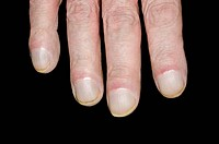 Close_up of fingers showing clubbing beaking of the nails in a 64 year old male patient with pulmonary fibrosis. Clubbing acropachy of the toes and fi...