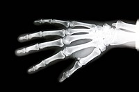 X_ray of the right hand of a 33_year_old woman. No lesion is visible.