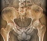 Osteoarthritis of the hip. Coloured frontal X-ray (front view) of the pelvis in a 59 year old patient showing osteoarthritis of both hip joints. The b...