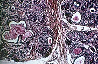 Pancreas in cystic fibrosis. Light micrograph of a section through the pancreas from a person affected by cystic fibrosis. Cystic fibrosis is a geneti...