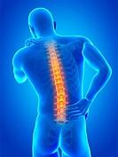 Human back pain, computer illustration.