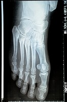 X-ray image of a mature woman's foot.